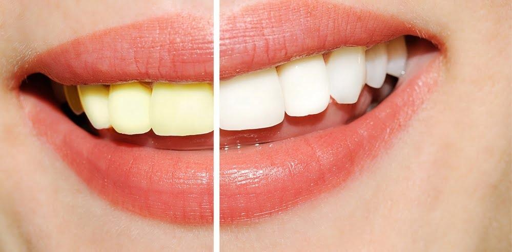 Jak zmniejszyć ból zęba w domu