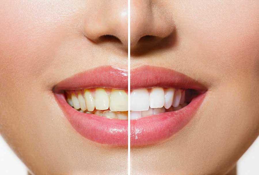 Wybielanie zębów, w domu czy w gabinecie dentystycznym?