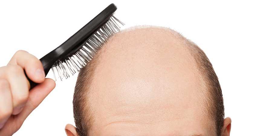 Sprawdzone sposoby na porost włosów