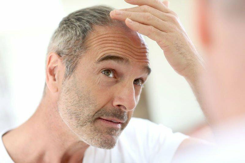 Czy łysienie ma związek z wiekiem?