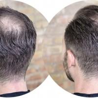 Zioła lepsze od leków na wypadanie włosów?