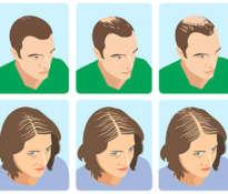 Co na łysienie androgenowe oferuje apteka?