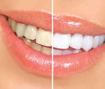 Darmowe wybielanie zębów
