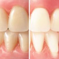 ABC wybielania zębów