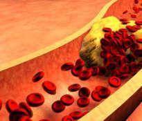 Wysoki poziom cukru we krwi a demencja
