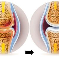 Nowości w leczeniu bolesności i sztywności stawów