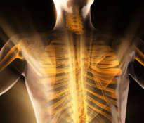 Jakie znaczenie ma gęstość kości?