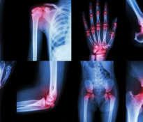 Jak wspomagać leczenie artretyzmu?
