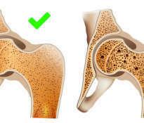 Naturalne środki na osteoporozę
