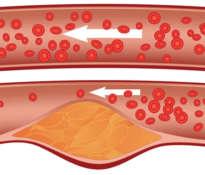 Naturalne środki na wysoki poziom cholesterolu