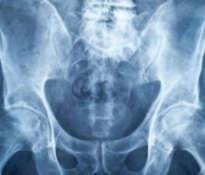 Wzmocnienie kości i zapobieganie osteoporozie